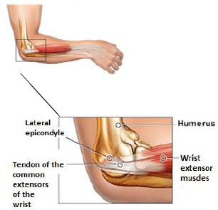 The lateral epicondyle