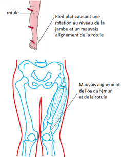 genou, Blessure du mollet, Mollet, calf muscle tear, biceps physiotherapy treatments, biceps brachii, biceps muscle, biceps physiotherapy treatments, Physiothérapie, clinique de physiothérapie à Montréal, élongation du muscle, claquage, élongation musculaire du quadriceps, guérir blessure musculaire,